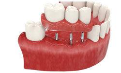 Базальная имплантация зубов BOI
