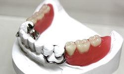 Бюгельный протез возвращает улыбку!