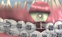 Имплантация зубов и ортодонтия