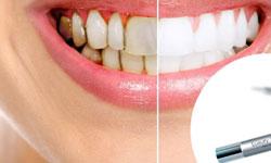 Как правильно выбрать метод отбеливания зубов