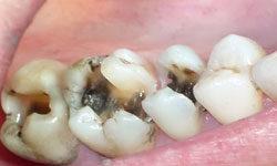 Кариес и другие стоматологические болезни