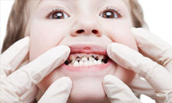 Когда плохие зубы у ребенка