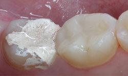 Мышьяк в стоматологии