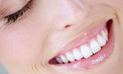 Наша белоснежная улыбка
