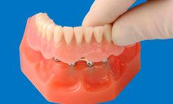 О протезировании и имплантации зубов