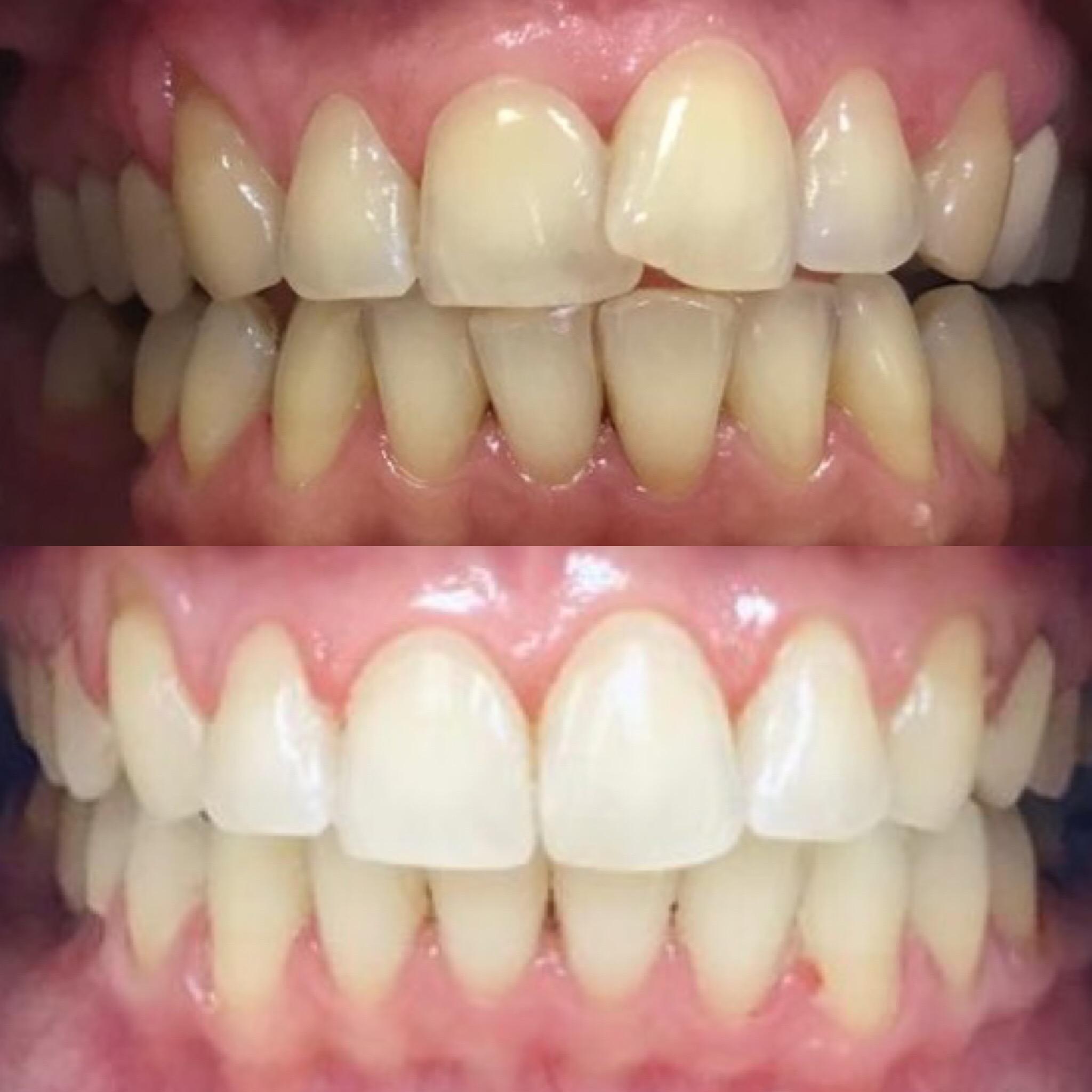 Ортодонтическое лечение длилось 1,5 года на системе брекетов Damon Clear