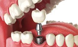 От металлокерамики к имплантации зубов