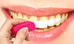 Почему нельзя отбеливать зубы дома