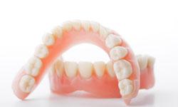Покрывной зубной протез