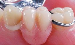 Протезирование одного зуба