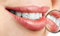 SKYCE: Сверкающие зубы — быстро и стильно