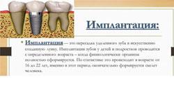 Словарь терминов по имплантации зубов