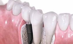 Современный подход к имплантации зубов