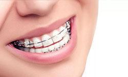 Стоимость брекетов на зубы