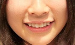 Учёные из Японии научились выращивать зубы