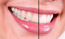 Внутриканальное отбеливание зубов (эндоотбеливание)