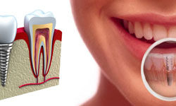 За и против имплантации зубов