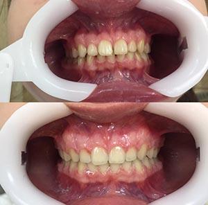Закрытие промежутков между зубами