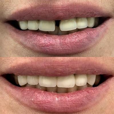 Металлокерамическими коронками исправлен дефект зубного ряда