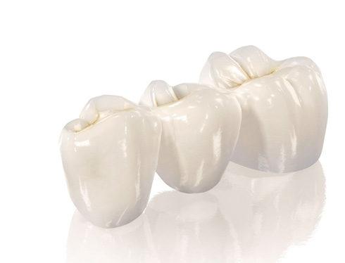 Металлокерамика <br /> на зуб