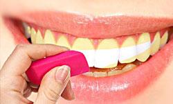 Чем грозит зубам отбеливание в домашних условиях