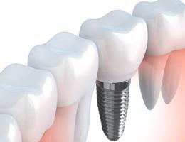 Зубная коронка на имплант