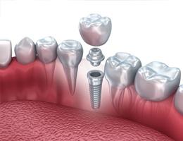 Установка зубных имплантов в Москве