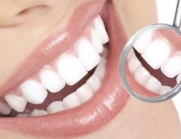 Очистка зубов методом AIR FLOW