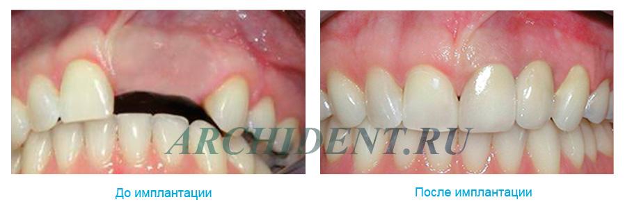 Имплантация зубов Dentium фото работ