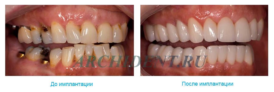 Имплантация зубов Dentium фото