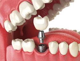 Имплантация зубов в Москве Архидент