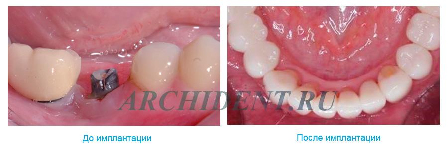 Имплантация зубов в Москве фото 1