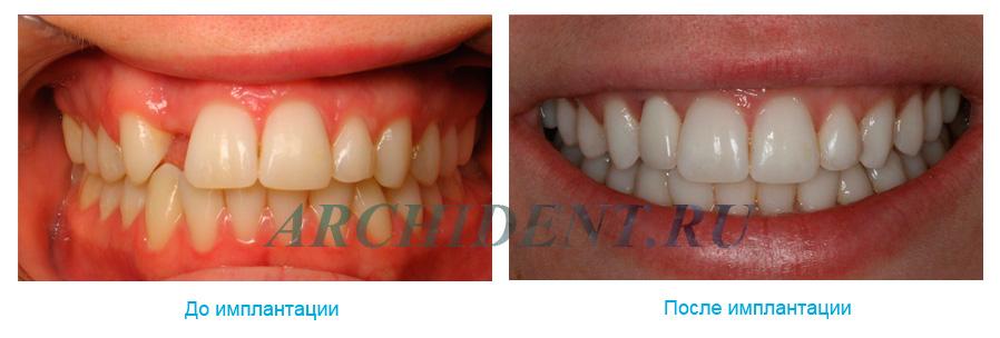 Имплантация зубов в Москве фото 3