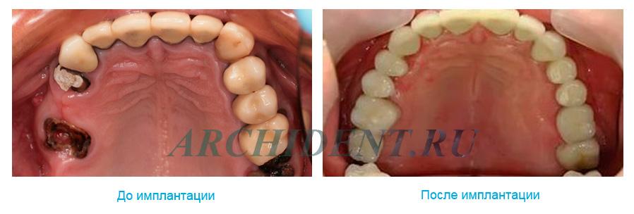 Имплантация зубов в Москве фото