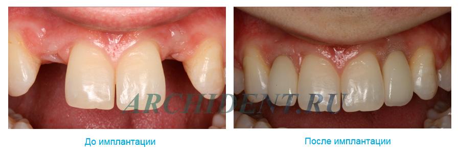 Имплантаты для зубов MIS фото работ