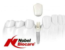 Имплантаты Nobel