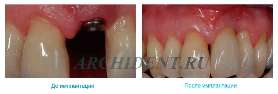 Импланты Dentium Implantium фото работ