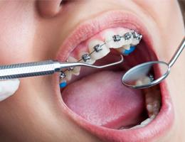 Ортодонтия и исправление прикуса
