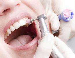 Отбеливание зубов Air Flow