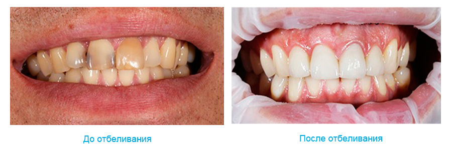 Отбеливание зубов до и после