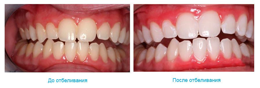 Отбеливание зубов Air Flow до и после