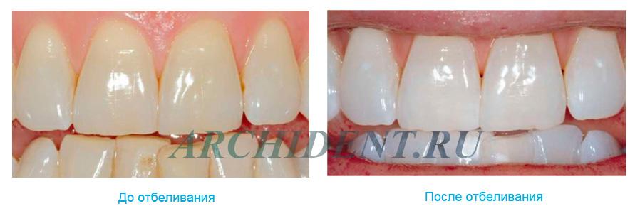 Отбеливание зубов ZOOM 3 фото