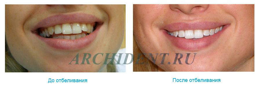 Отбеливание зубов ZOOM 3 до и после