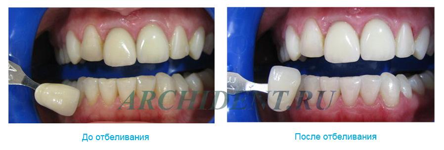 Отбеливание зубов ZOOM 3 фото работ