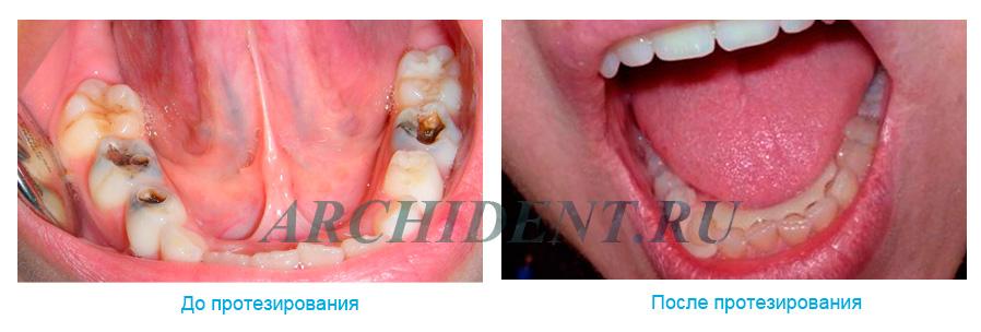 Протезирование зубов в Москве фото