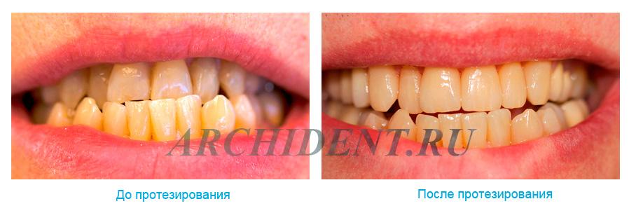 Протезирование зубов в Москве фото работ