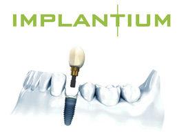 Установка импланта Implantium